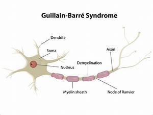Albumin May Pre... Guillain Barre Syndrome
