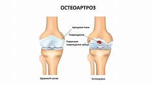 Препараты для введения в коленный сустав при артрозе