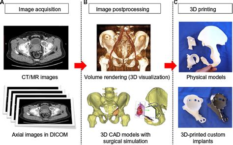 Breast Ct Mr Template Set by Full Text 3d Printed Patient Specific Applications In