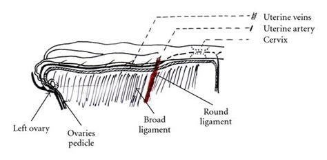 Ovariohysterectomy in the Bitch : Figure 2
