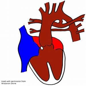 Utah CCHD - Information on the Heart & CCHD