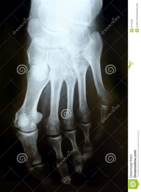 ray photograph  human foot stock photography image