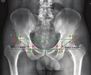 Sharp U0026 39 S Angles  Black Lines  On A Pelvic X