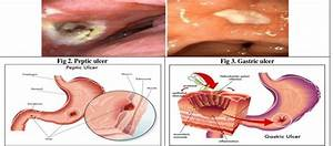 Ulcer Caused By H  Pylori In Duodenum And Git