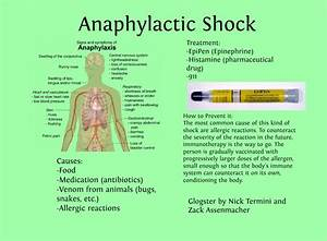 Anaphylactic Shock Symptoms And Treatment