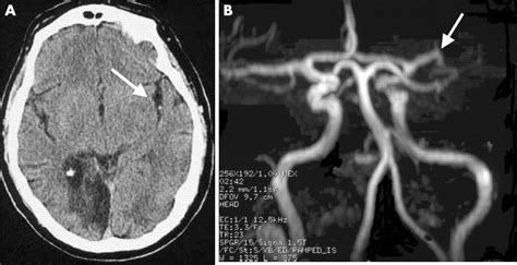 probability  middle cerebral artery mra flow signal abnormality  quantified ct