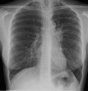 tuberculosis facts information pictures encyclopedia
