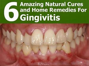 6 Natural Cures and Home Remedies For Gingivitis