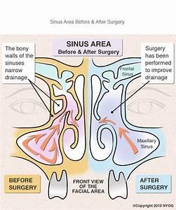 Sinus Surgery Nyc