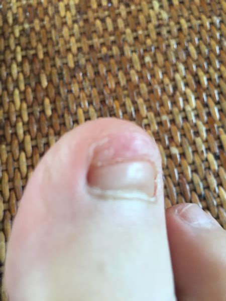 Anyway it was like 2 months ago and 2 weeks ago i noticed that the nails were coming off his hands, then off his feet. Help - toenail fell off now what (with pic sorry) | Mumsnet