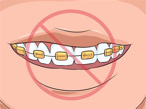 color of your how to choose the color of your braces 14 steps with