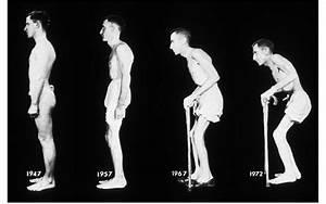 Ankylosing Spondylitis  Progression Of Deformities  A