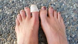 Самое эффективное средство от грибка ногтя