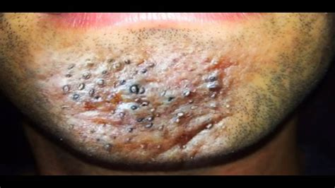 Blackhead Acne Inversa; Boils Abscesses, Wounds and