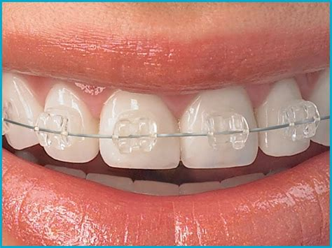 Find out here and see the best dental insurance. Best Dental Braces Doctor Satellite   Ceramic Braces specialist in Satellite, Ahmedabad