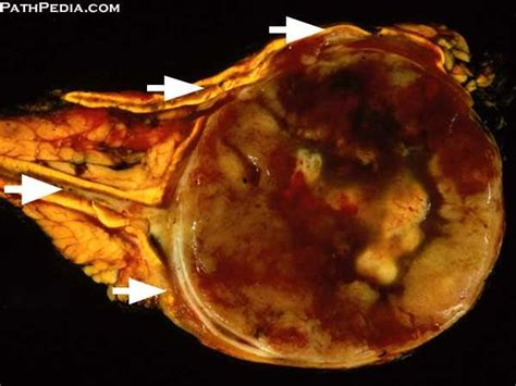 gross pathology images  adrenal  pathpediacom