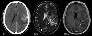 Transverse CT, T2 weighted (T2w) and contrast enhanced ...