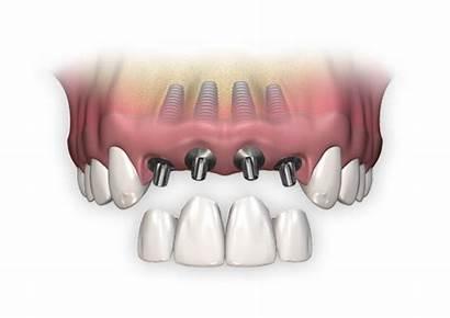 Dental Implants Multiple Tooth Implant Bone Bridge