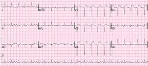 Dr  Smith U0026 39 S Ecg Blog  St Elevation And Qs