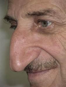 acne naso