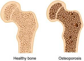 Low bone density  Osteoporosis Bone Health