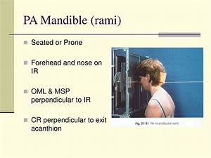 Ppt - Mandible  U0026 Tmj Lecture Powerpoint Presentation  Free Download