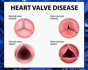 Highlighting Heart Valve Disease For American Heart Month