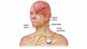 Vagal Nerve Stimulator Complications