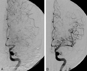 A   Angiogram Showing Tortuosity Of The Cavernous Ica And Occlusion Of