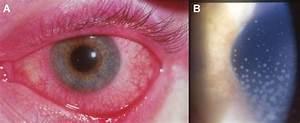 Uveitis In Ankylosing Spondylitis   A  Eye Is Red   B