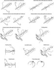 Types of Surgical Suture Techniques
