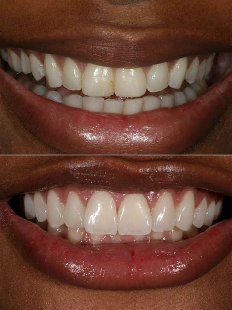Insurance is usually in place to help fix things that are broken or damaged. Does Insurance Cover Veneers?   Cosmetic Dentist Los Angeles, CA