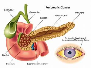 Oral Germs Causing Pancreatic Cancer