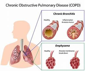 Explainer  What Is Chronic Obstructive Pulmonary Disease