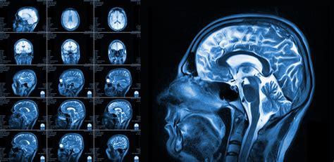 Brain MRI Scan | Dallas TX | Stroke