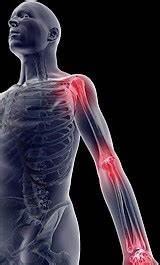 Болят суставы поднимается температура