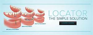 Locator Dental Implant Locator Attachment Quick Reference