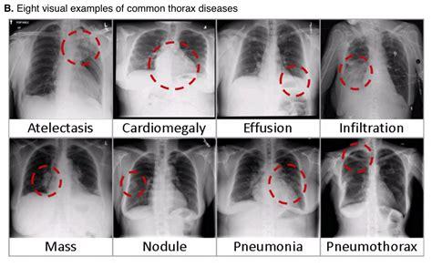ray chest common thorax nih disease dataset