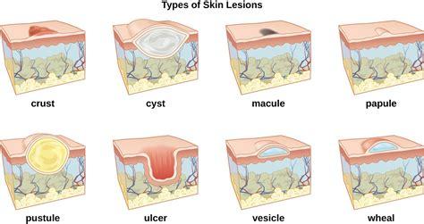 anatomy  normal microbiota   skin  eyes