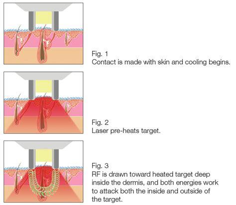 Hair Implants Superior Az 85273 Wrinkle Reduction Treatment In Prescott Arizona