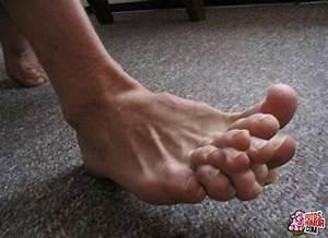 kromme tenen