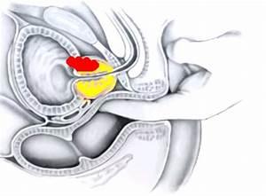 От простатита может опухнуть яйцо