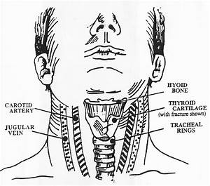 Neck Diagrams To Print