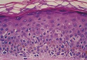 Histologic Resolution of Melanoma In Situ (Lentigo Maligna ...