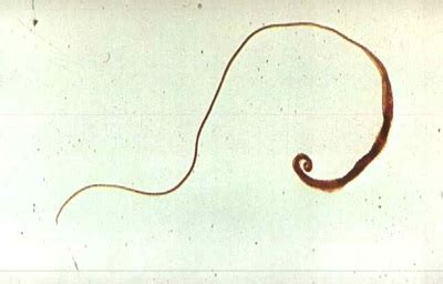 worms home