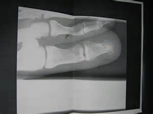 Big Toe Fracture X-ray