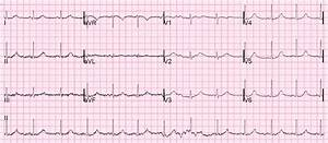 Dr  Smith U0026 39 S Ecg Blog  A Patient With A  U0026quot Seizure U0026quot  And A