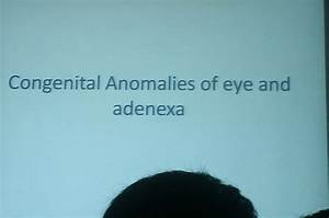 Lecture Slides  Eye  Congenital Anomalies