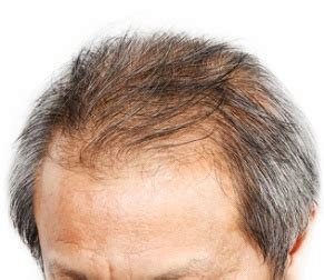 hair loss  mold   home