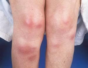 Erythema Nodosum - Pictures, Causes, Symptoms, Diagnoses ...